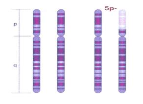 Cromosoma 5p